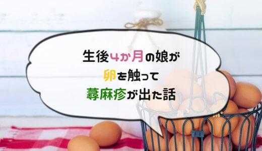 食物アレルギー?!赤ちゃんが卵に触って蕁麻疹が出た話(写真あり)